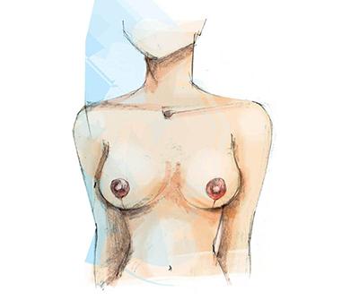 borstverkleining plastische chirurgie Zeeland