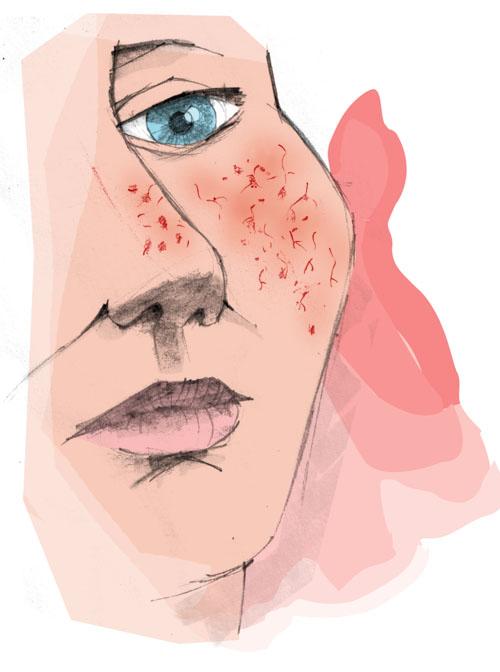 couperose plastische chirurgie Zeeland