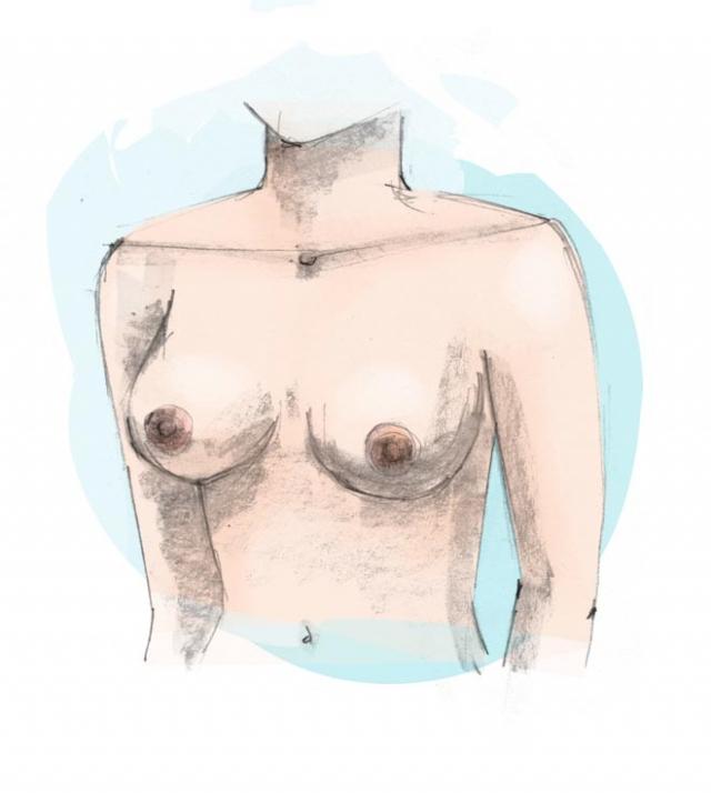 borstlift plastische chirurgie Zeeland