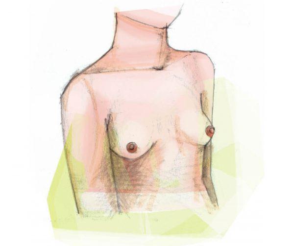 borstvergroting plastische chirurgie Zeeland