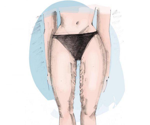 dijbeenlift plastische chirurgie Zeeland