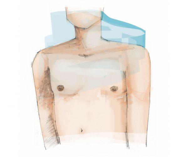 borstcorrectie bij mannen