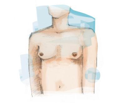 borstcorrectie bij mannen, plastisch chirurgie zeeland