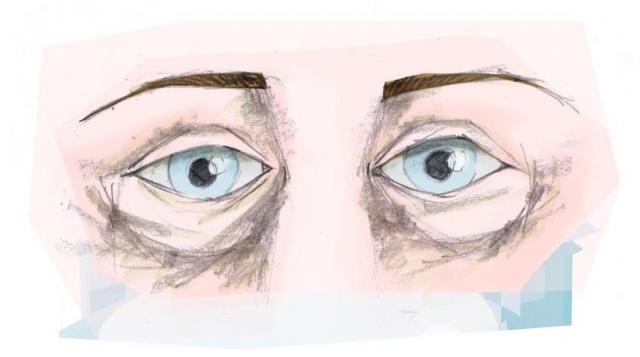 ooglidcorrectie Zeeland