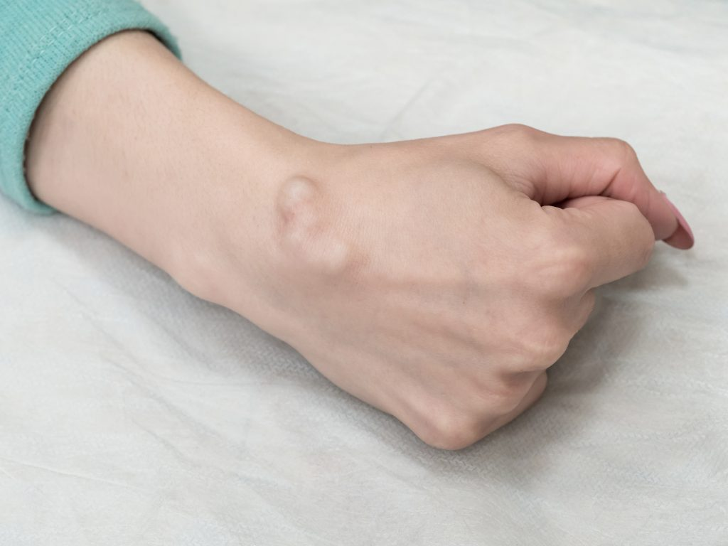 Ganglion hand en polschirurgie Zeeland